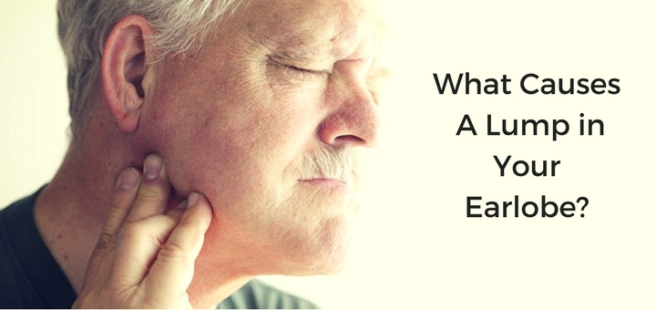 8 Causes & Treatments for Lump in Earlobe   Daily Health Cures