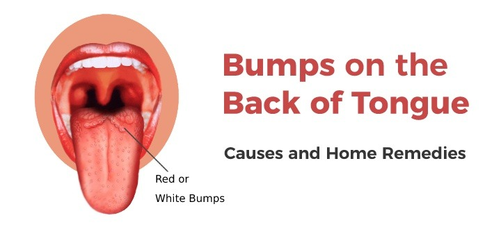 Bumps on Back of Tongue: Common Causes & Home Remedies