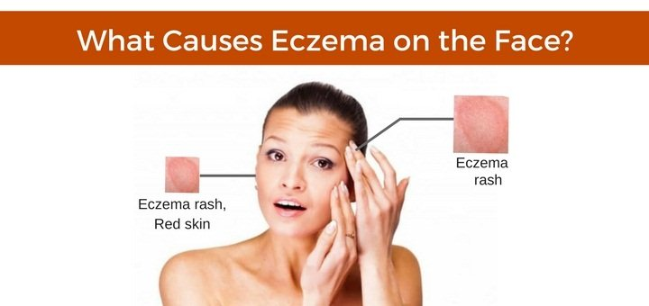 eczema on the face possible causes natural treatments