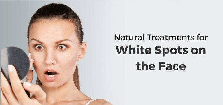 how to get rid of white spots on face