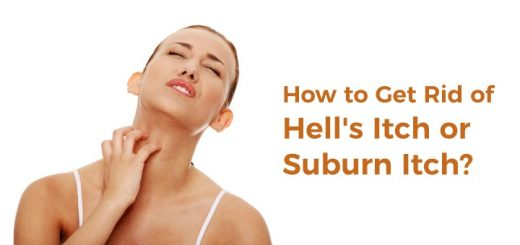 Natural Cures For Sunburn Itch