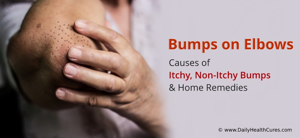 Bumps on Elbows: Causes of Itchy & Non-Itchy Bumps ...