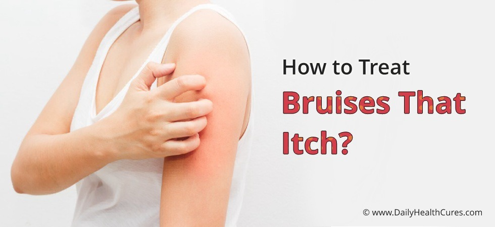 Bruises that Itch: 11 Home Remedies to Treat Itchy Bruises