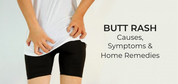 Can help anal rash on buttocks men