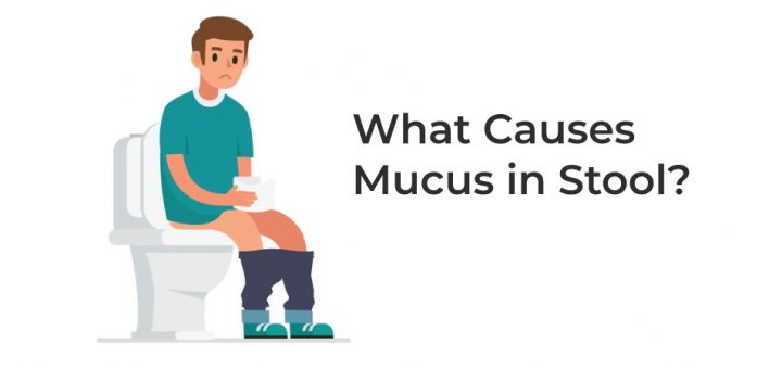 Summary -> What Can Cause Mucus In Stool Verywellhealthcom